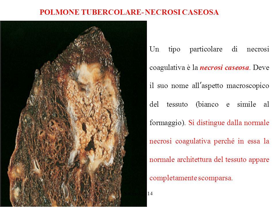 POLMONE TUBERCOLARE- NECROSI CASEOSA