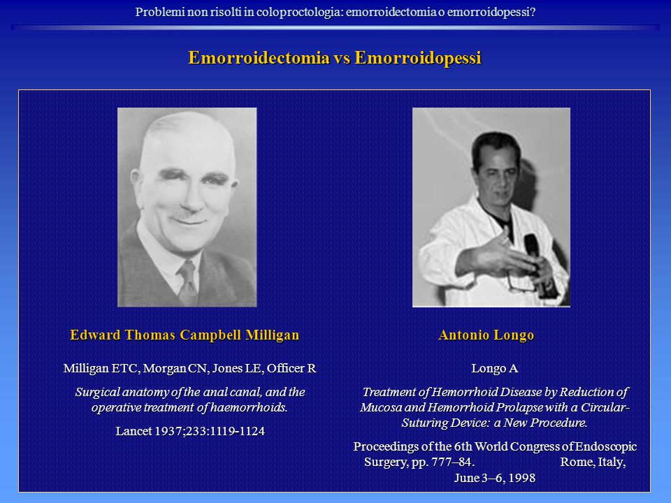 Emorroidectomia vs Emorroidopessi Edward Thomas Campbell Milligan