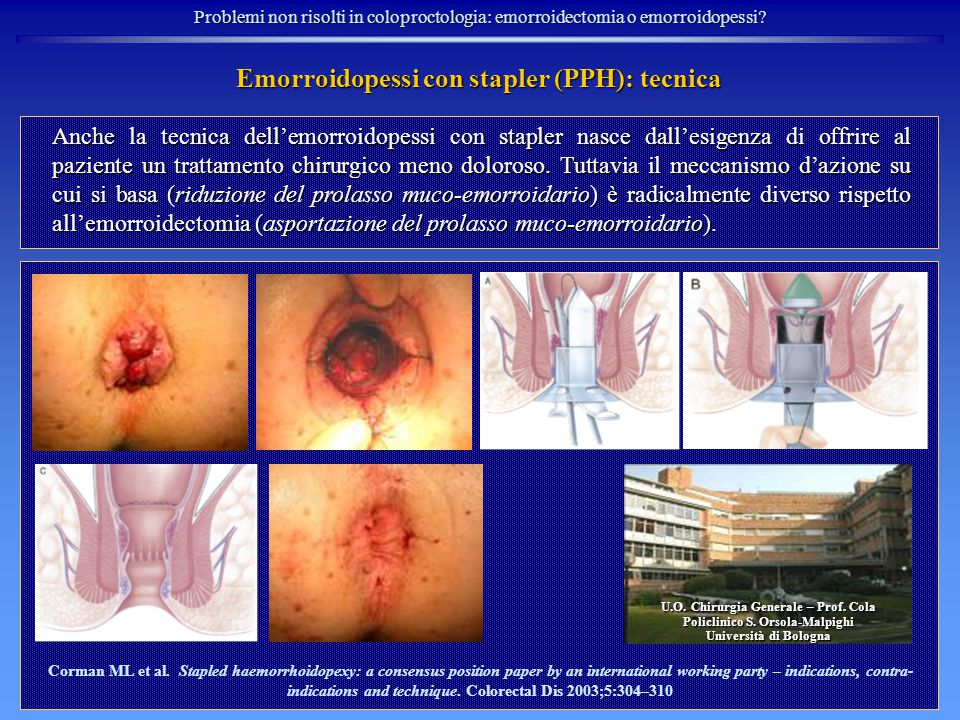 Emorroidopessi con stapler (PPH): tecnica