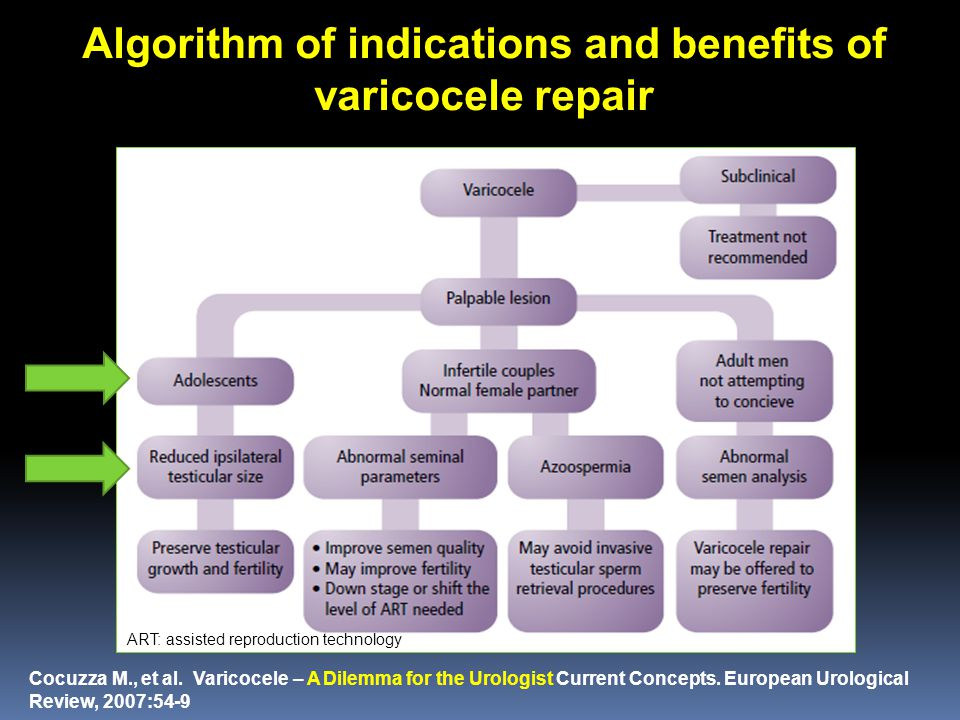 Algorithm of indications and benefits of varicocele repair