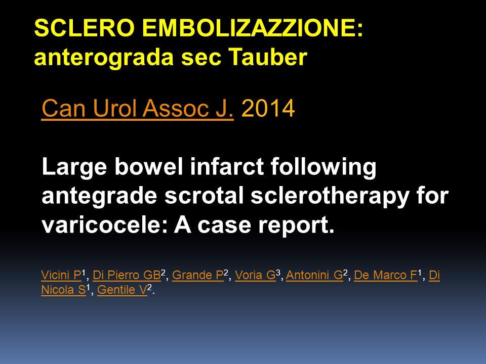 SCLERO EMBOLIZAZZIONE: anterograda sec Tauber