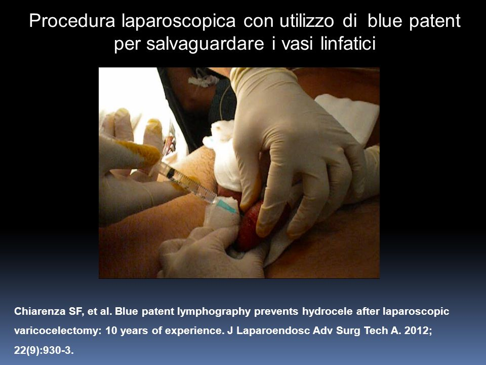 Procedura laparoscopica con utilizzo di blue patent per salvaguardare i vasi linfatici