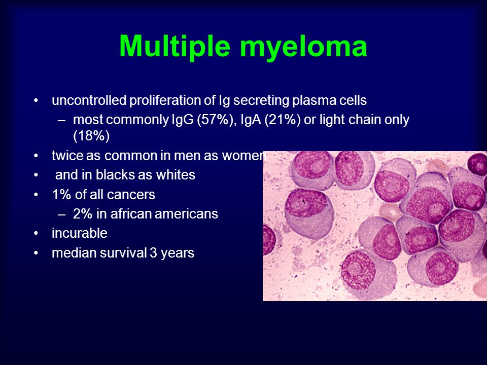 Multiple myeloma uncontrolled proliferation of Ig secreting plasma cells. most commonly IgG (57%), IgA (21%) or light chain only (18%)