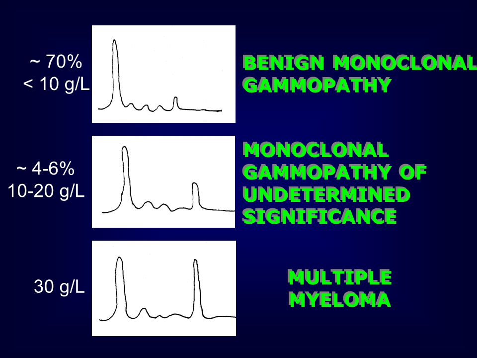 ~ 70% < 10 g/L. BENIGN MONOCLONAL GAMMOPATHY. MONOCLONAL GAMMOPATHY OF UNDETERMINED SIGNIFICANCE.