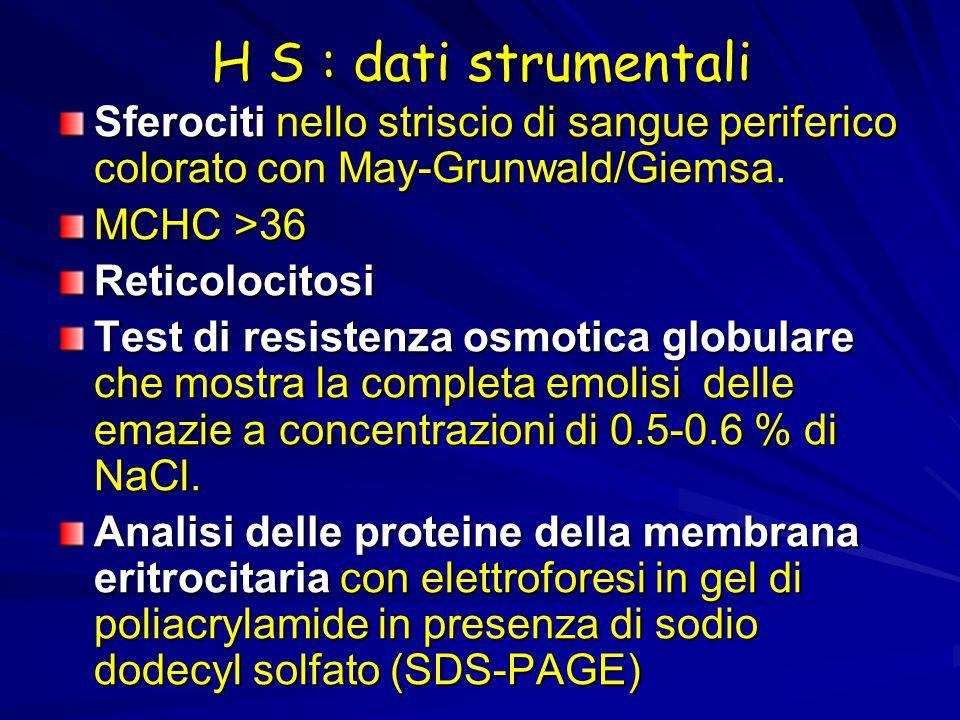 H S : dati strumentali Sferociti nello striscio di sangue periferico colorato con May-Grunwald/Giemsa.