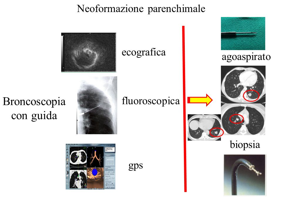 Neoformazione parenchimale