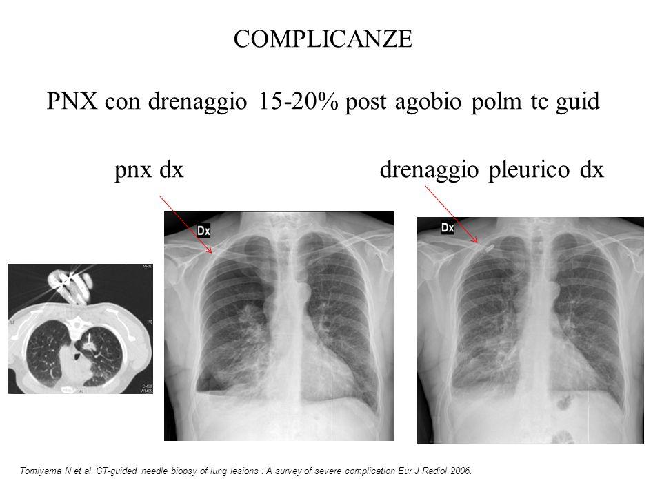 PNX con drenaggio 15-20% post agobio polm tc guid