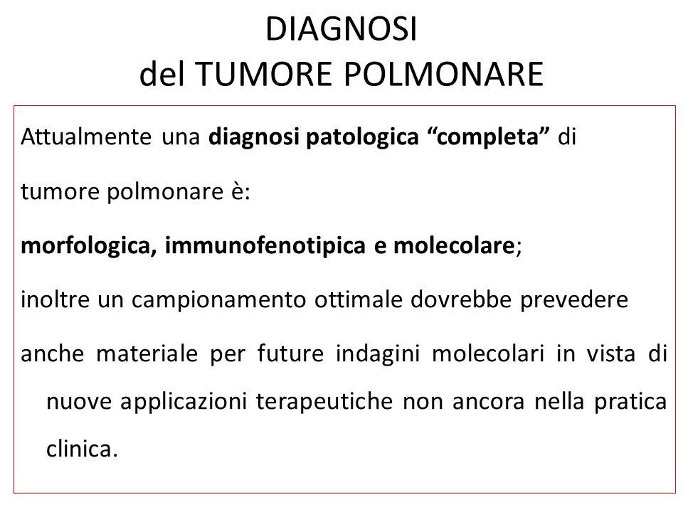 DIAGNOSI del TUMORE POLMONARE