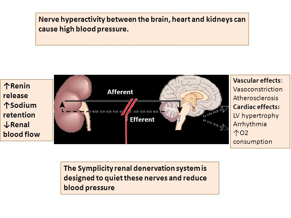 Nerve hyperactivity between the brain, heart and kidneys can cause high blood pressure.