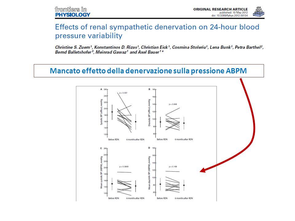 Mancato effetto della denervazione sulla pressione ABPM