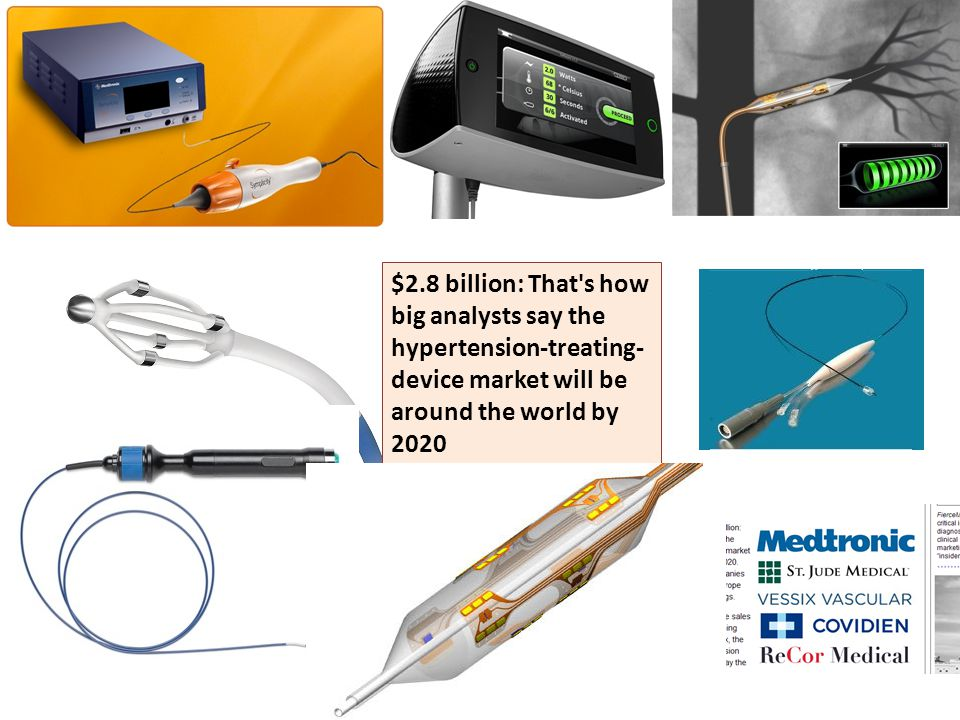 $2.8 billion: That s how big analysts say the hypertension-treating-device market will be around the world by 2020