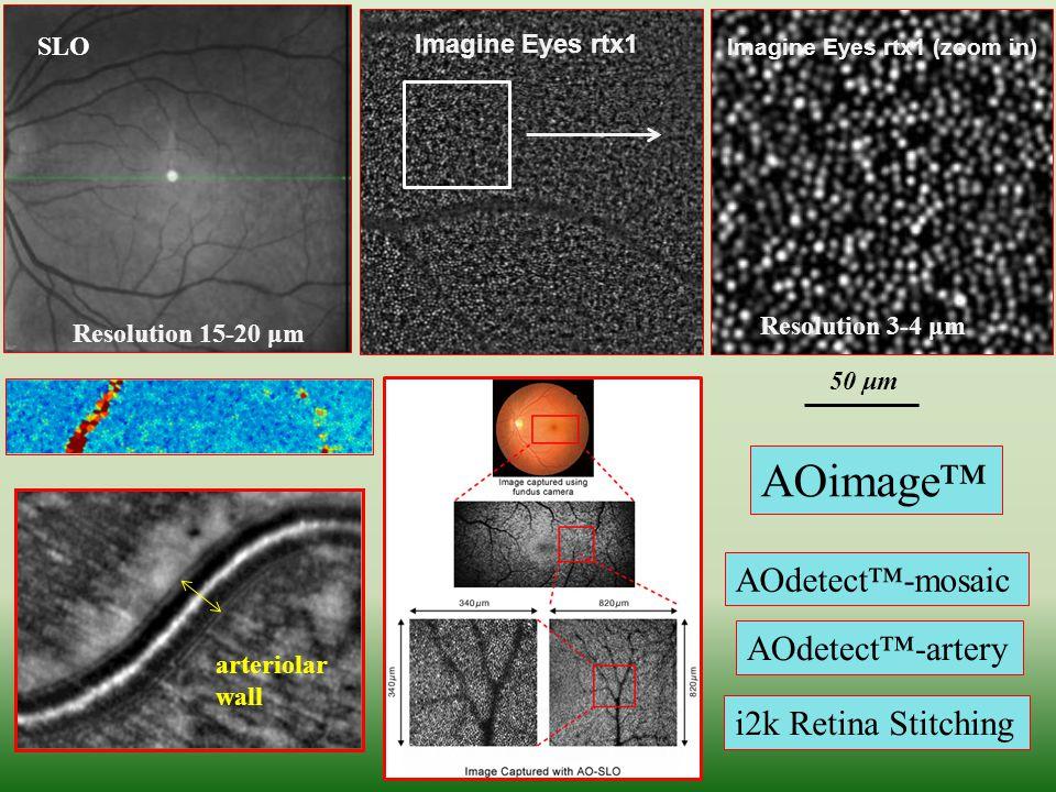 AOimage™ AOdetect™-mosaic AOdetect™-artery i2k Retina Stitching SLO