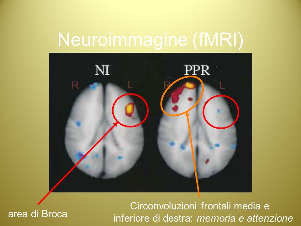 Neuroimmagine (fMRI) R L R L Circonvoluzioni frontali media e