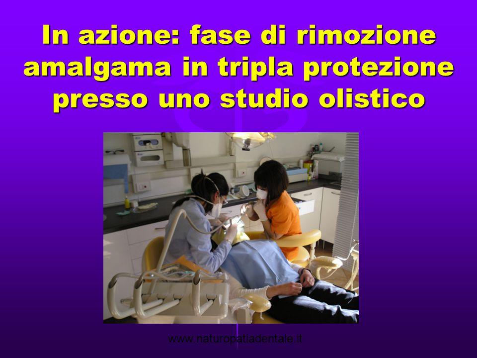 01/02/14 In azione: fase di rimozione amalgama in tripla protezione presso uno studio olistico.