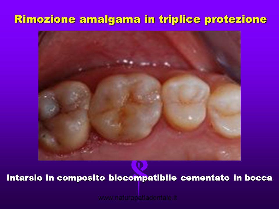 Rimozione amalgama in triplice protezione