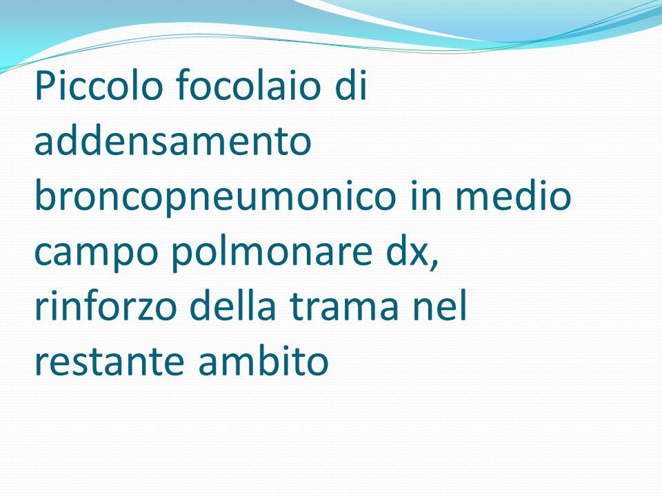 Piccolo focolaio di addensamento broncopneumonico in medio campo polmonare dx, rinforzo della trama nel restante ambito