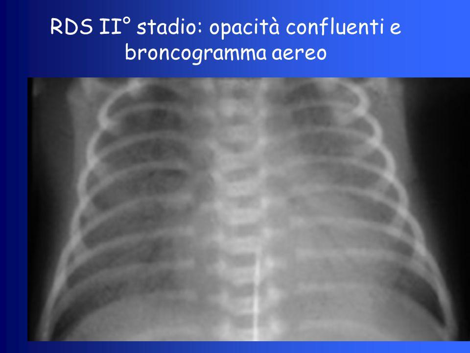 RDS II° stadio: opacità confluenti e broncogramma aereo