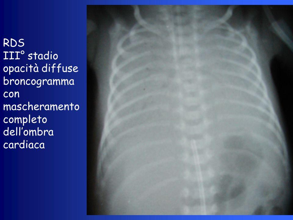 RDS III° stadio opacità diffuse broncogramma con mascheramento completo dell'ombra cardiaca