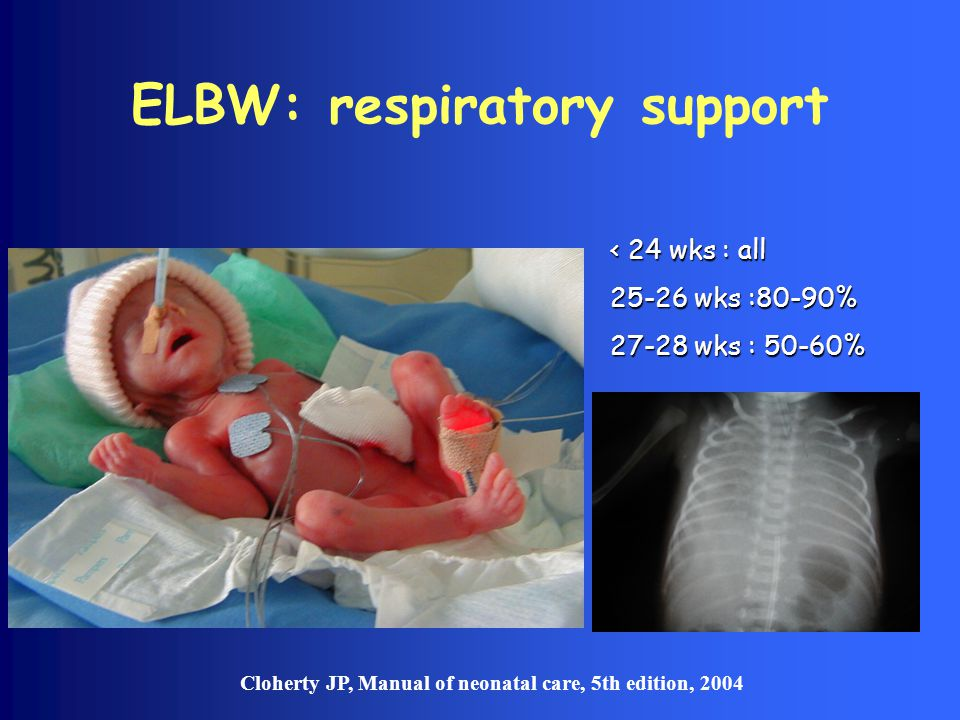 ELBW: respiratory support