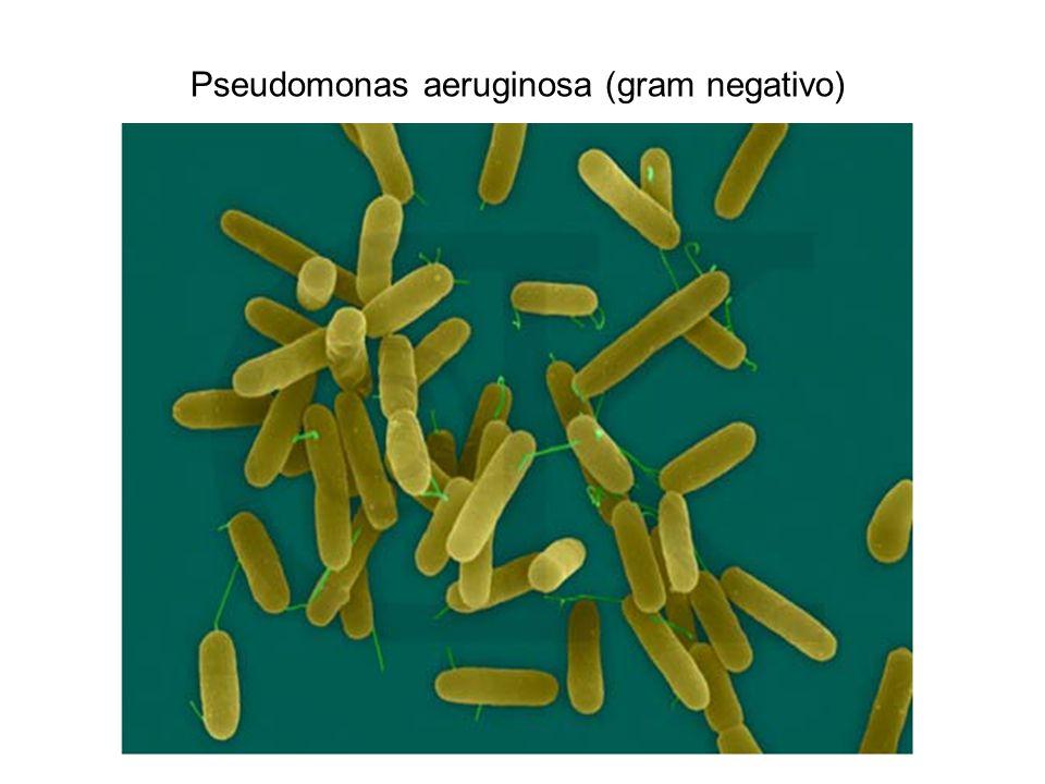 Pseudomonas aeruginosa (gram negativo)