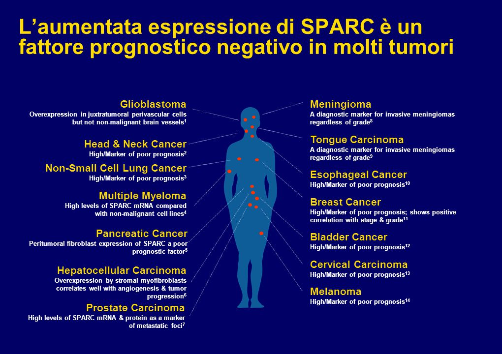 L'aumentata espressione di SPARC è un fattore prognostico negativo in molti tumori