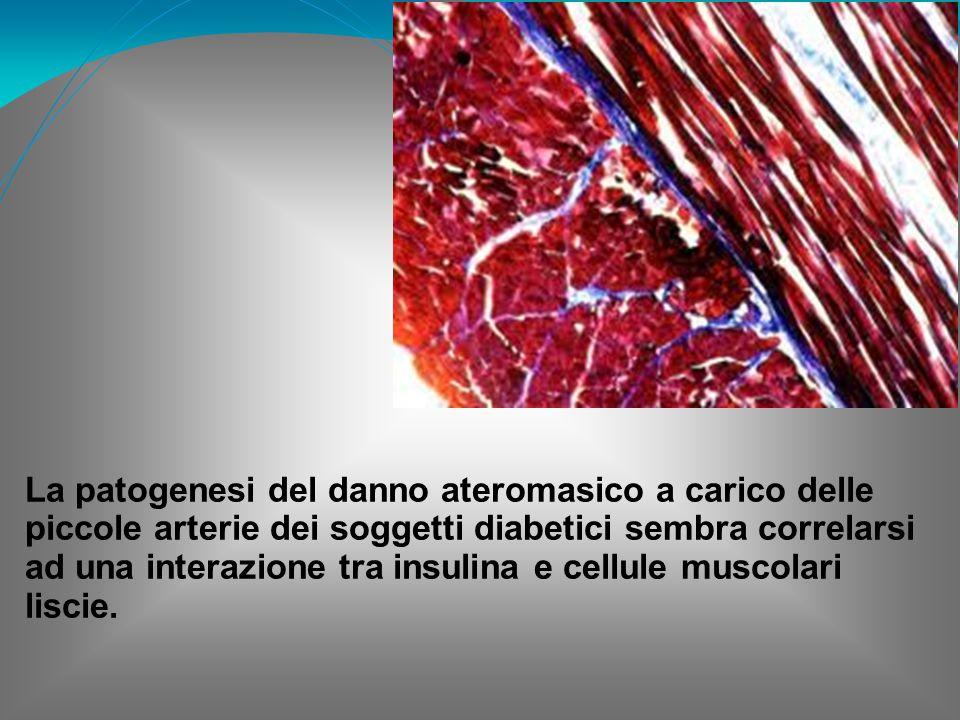 La patogenesi del danno ateromasico a carico delle piccole arterie dei soggetti diabetici sembra correlarsi ad una interazione tra insulina e cellule muscolari liscie.