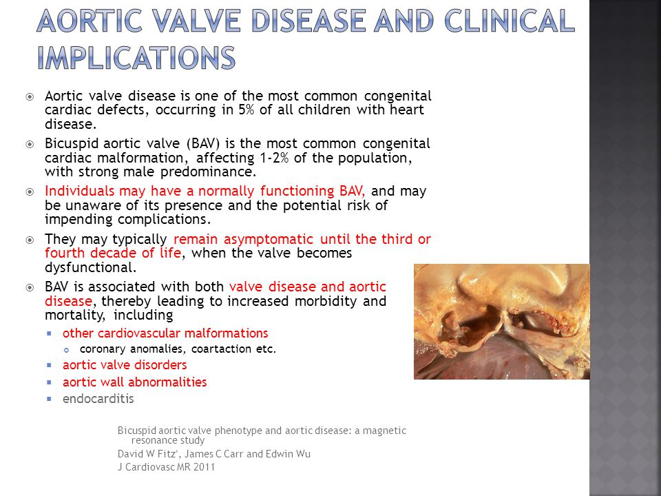 Aortic valve disease and clinical implications