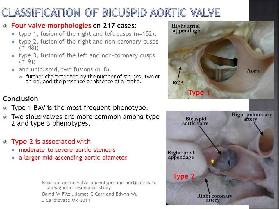 Classification of bicuspid aortic valve