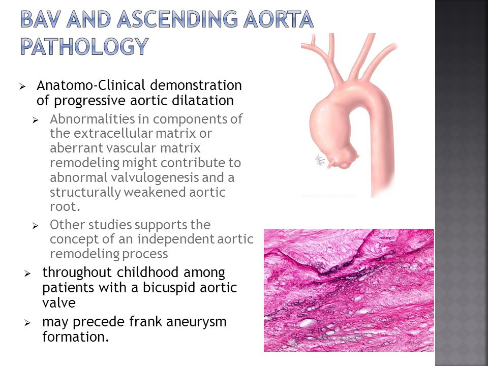 Bav and ascending aorta pathology