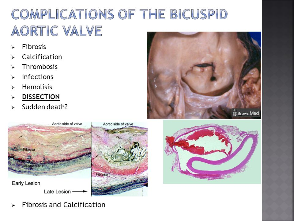 Complications of the bicuspid aortic valve
