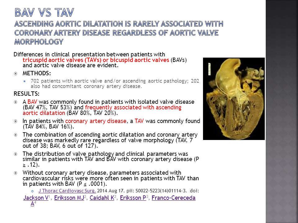 Bav vs tav Ascending aortic dilatation is rarely associated with coronary artery disease regardless of aortic valve morphology