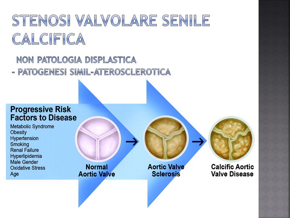 Stenosi valvolare senile calcifica non patologia displastica - patogenesi simil-aterosclerotica