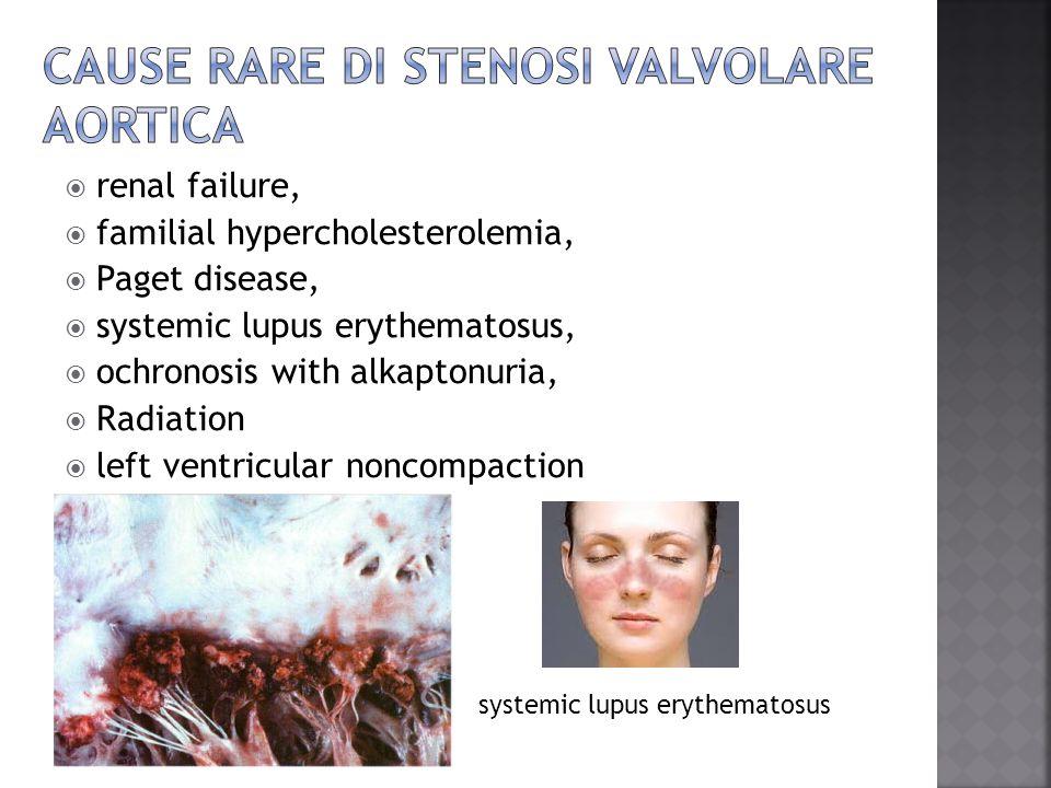 Cause rare di stenosi valvolare aortica