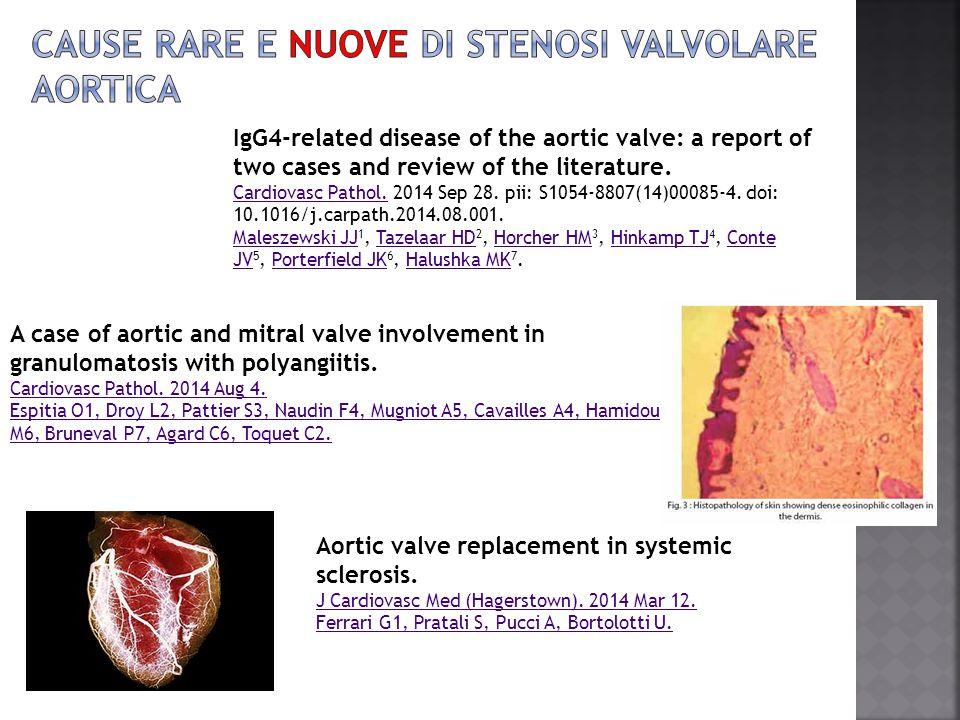 Cause rare e nuove di stenosi valvolare aortica