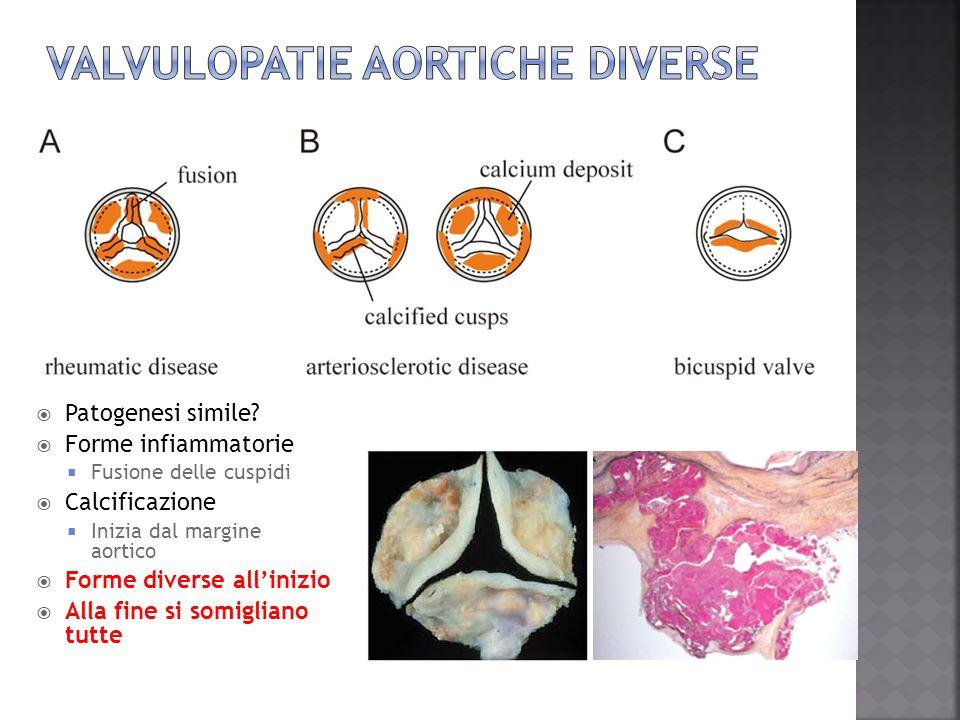 Valvulopatie aortiche diverse