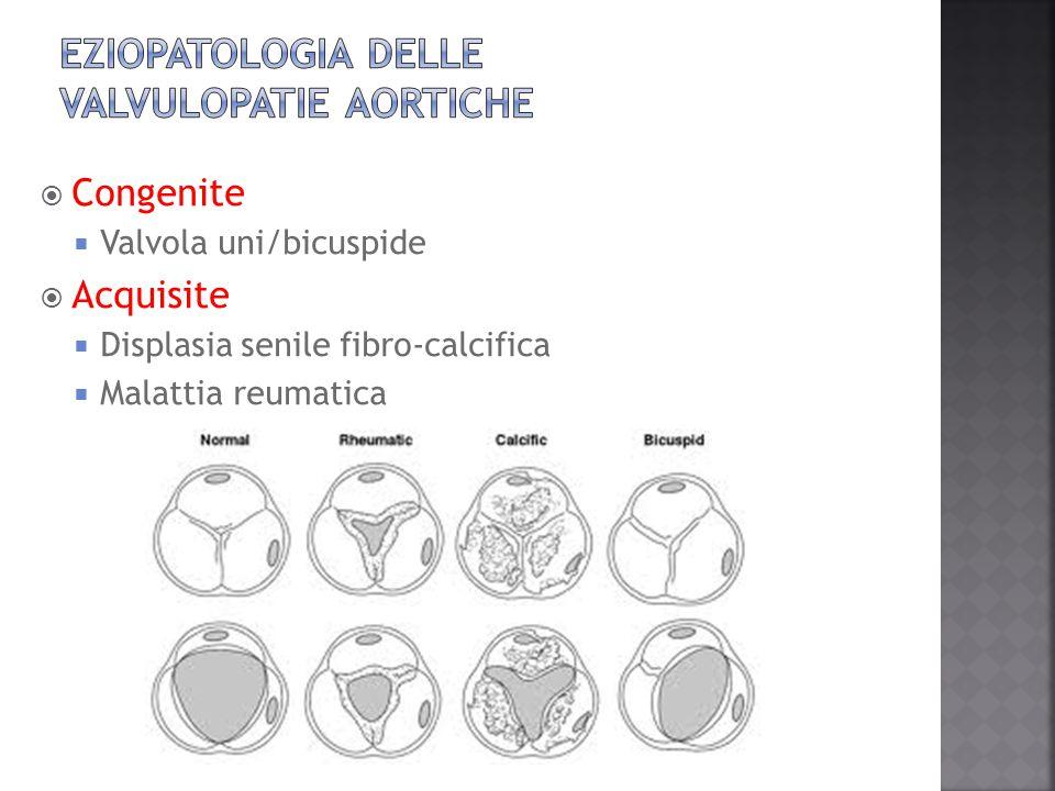Eziopatologia delle valvulopatie aortiche