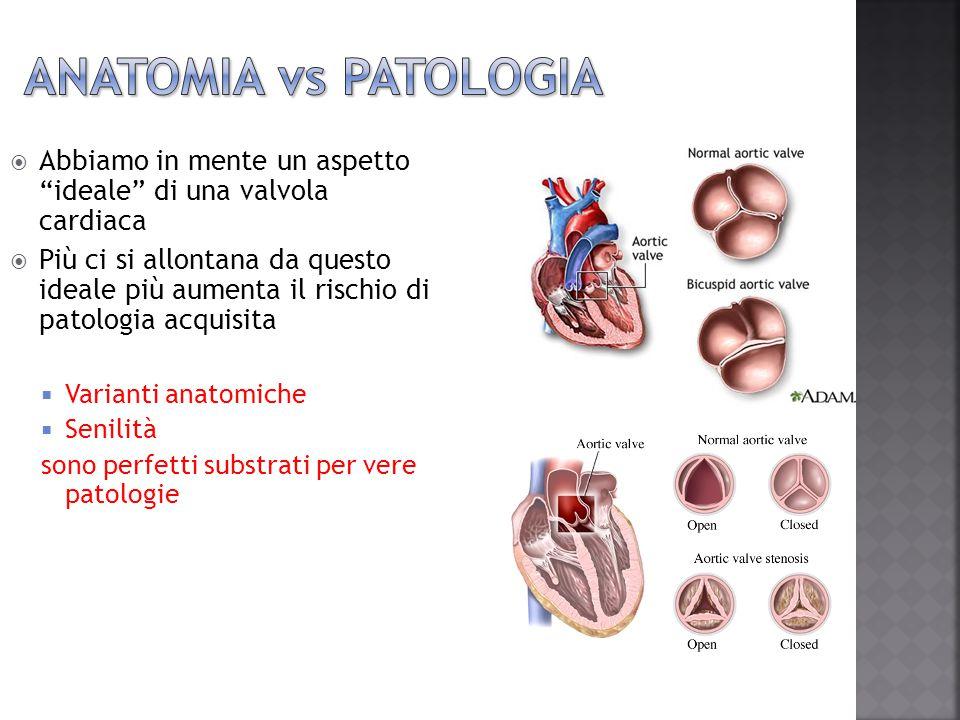 Anatomia vs Patologia Abbiamo in mente un aspetto ideale di una valvola cardiaca.