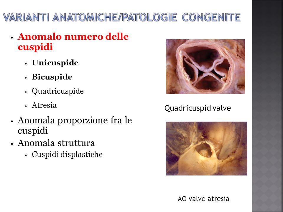 varianti anatomiche/patologie congenite