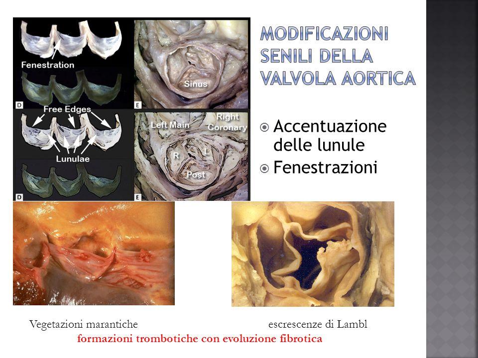 Modificazioni senili della valvola aortica