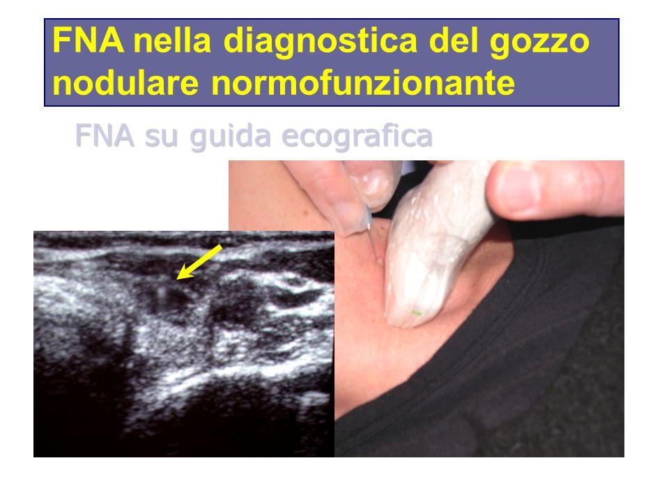 FNA nella diagnostica del gozzo nodulare normofunzionante
