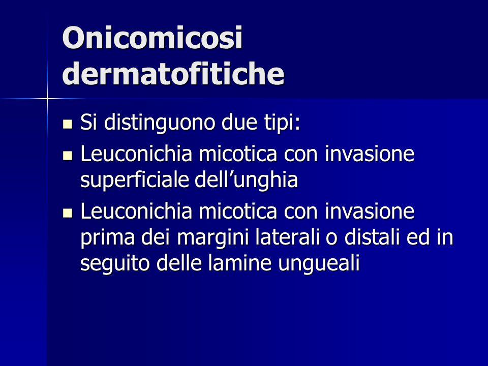 Onicomicosi dermatofitiche