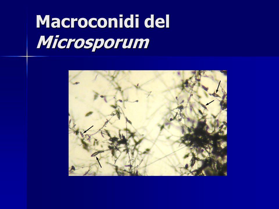 Macroconidi del Microsporum