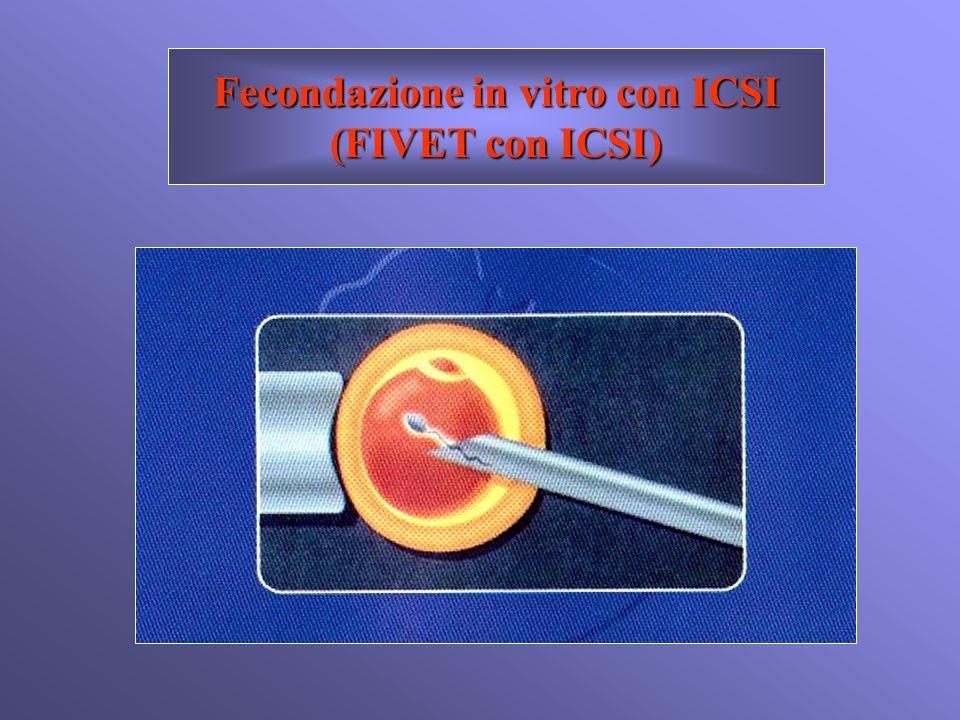 Fecondazione in vitro con ICSI