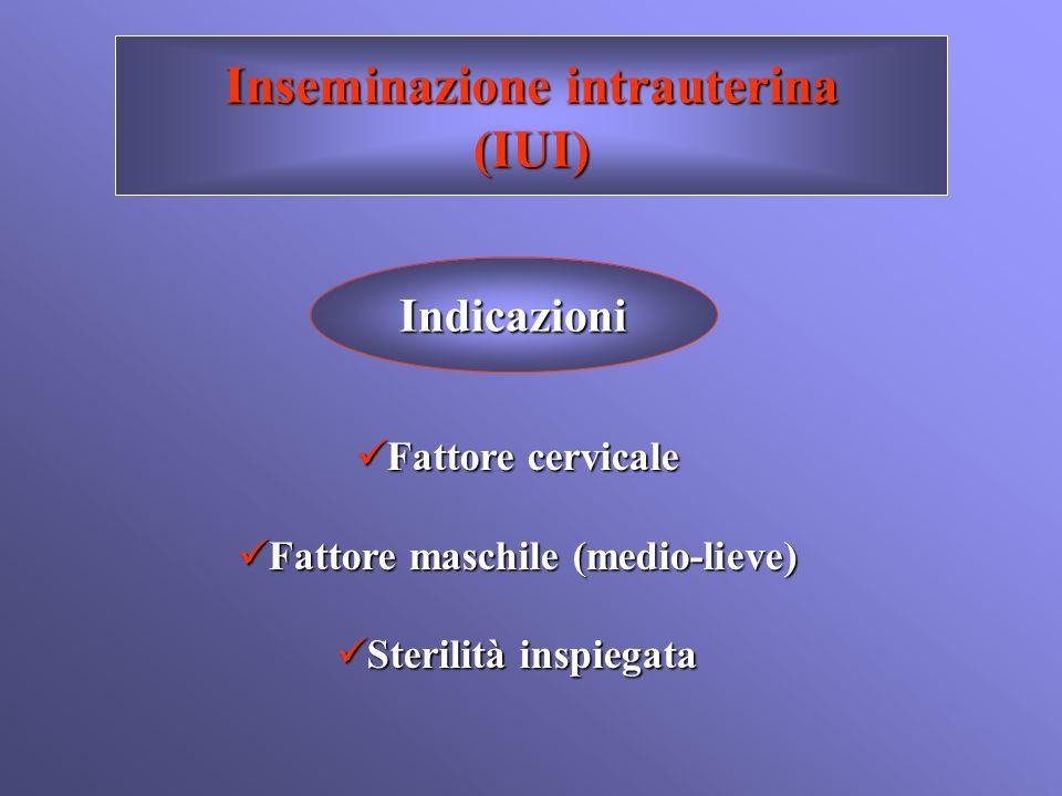 Inseminazione intrauterina Fattore maschile (medio-lieve)