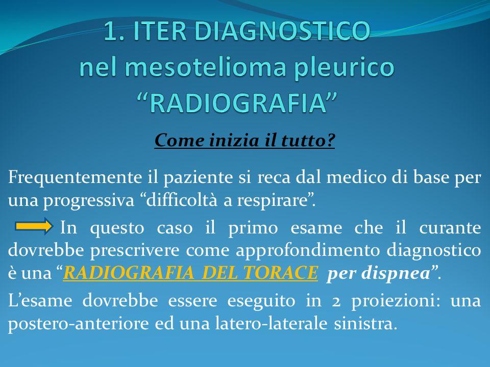 1. ITER DIAGNOSTICO nel mesotelioma pleurico RADIOGRAFIA