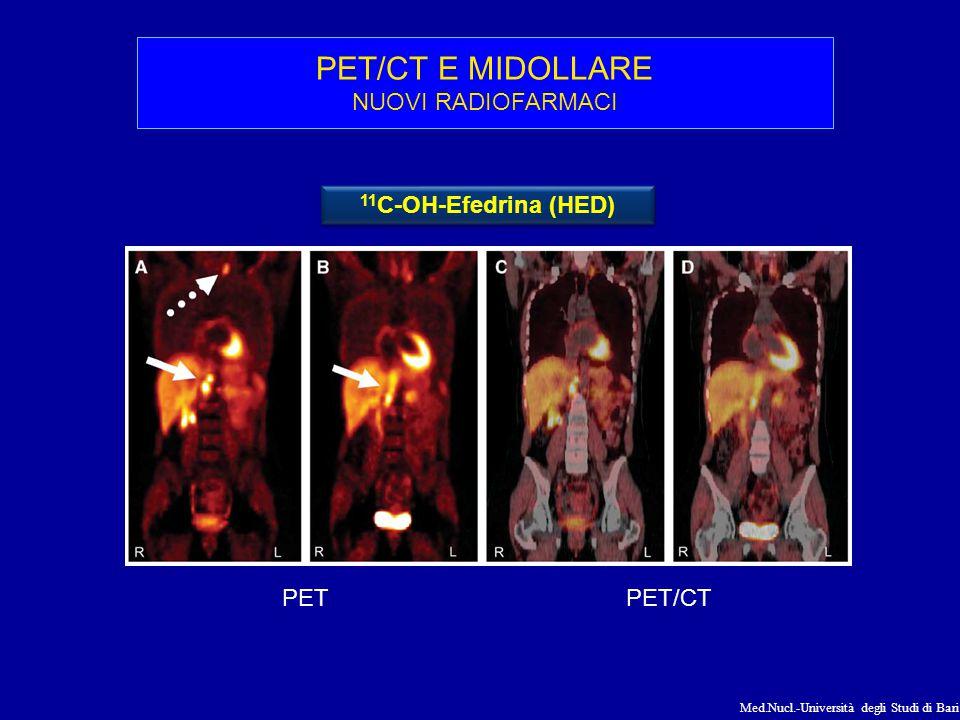 PET/CT E MIDOLLARE NUOVI RADIOFARMACI