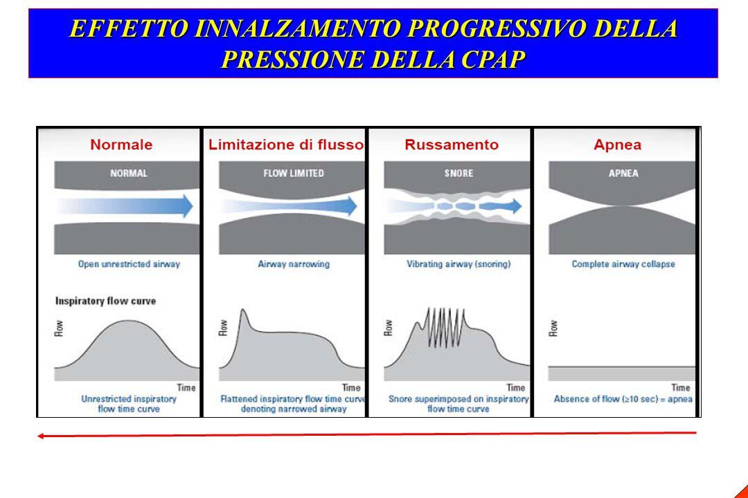EFFETTO INNALZAMENTO PROGRESSIVO DELLA PRESSIONE DELLA CPAP