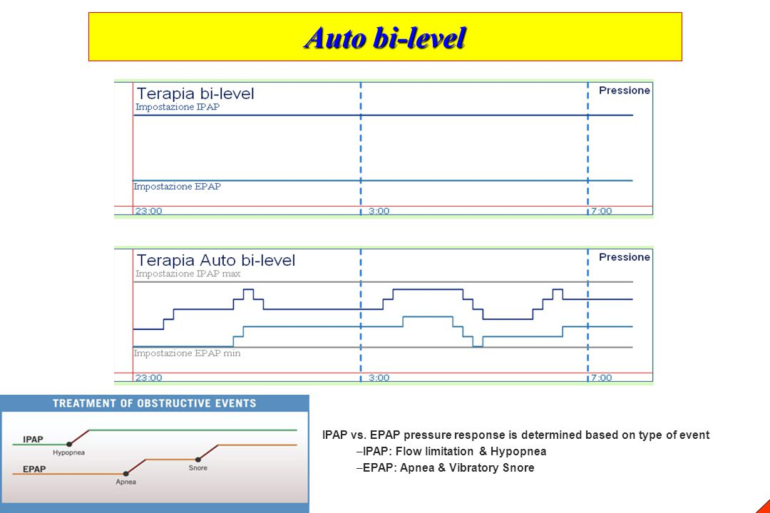 Auto bi-level IPAP vs. EPAP pressure response is determined based on type of event. IPAP: Flow limitation & Hypopnea.