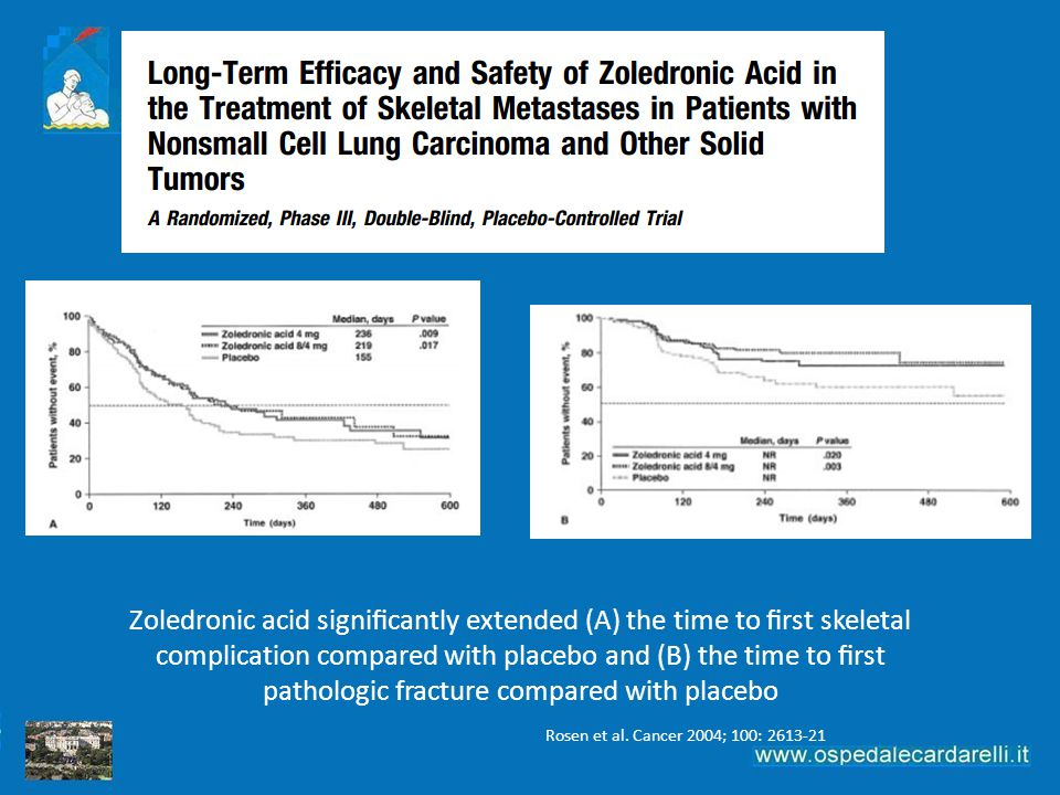 Zoledronic acid significantly extended (A) the time to first skeletal