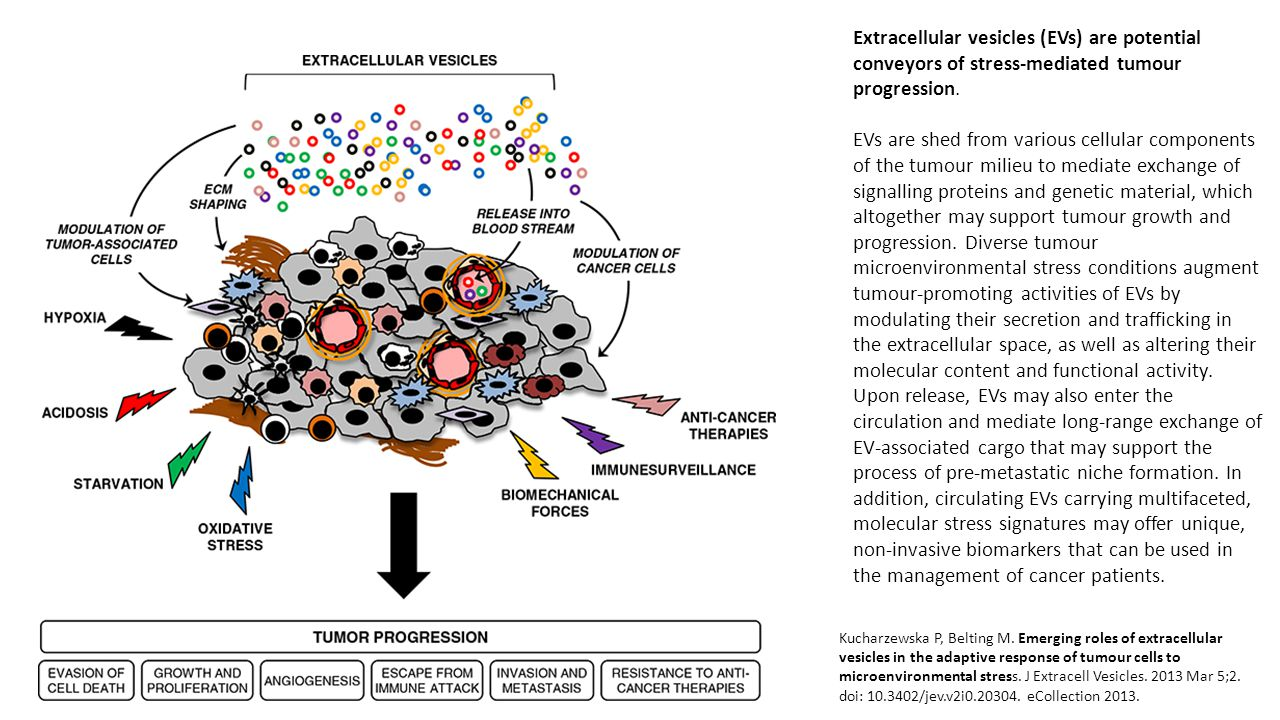 Extracellular vesicles (EVs) are potential conveyors of stress-mediated tumour progression.